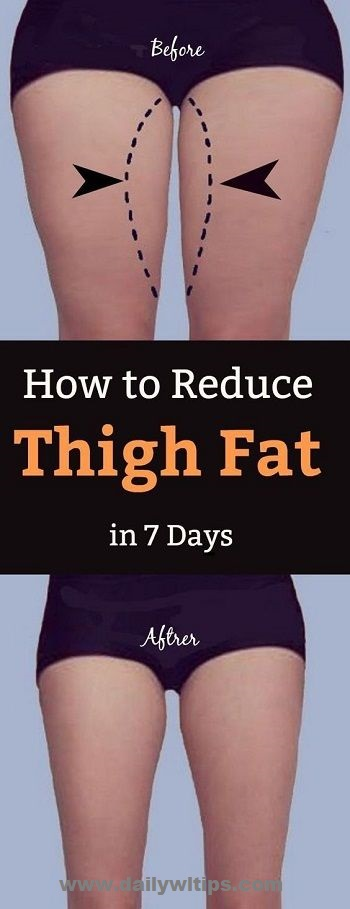 Exercises to Reduce Thigh Fat Guide