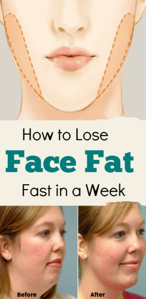 How to Lose Face Fat in a Week